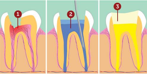 tratamento-de-canal-dente]